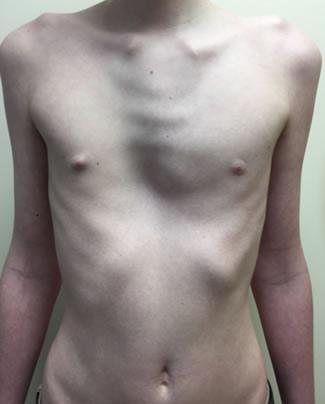 mixed-pectus-deformities-1