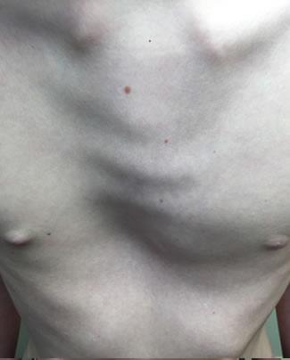 mixed-pectus-deformities-2