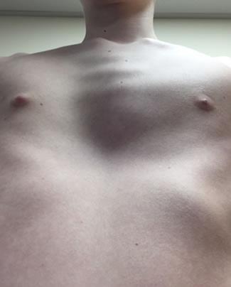 mixed-pectus-deformities-3